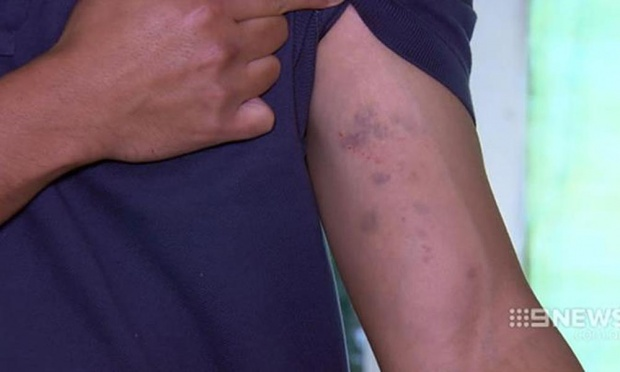 Man holding his bruised arm